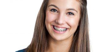 Já mám rovnátka, rovnátka od Hnátka… Rovnátka ti krásně zuby vyrovnají, ale ústní hygiena je s nimi dvakrát důležitější. Jak na to?